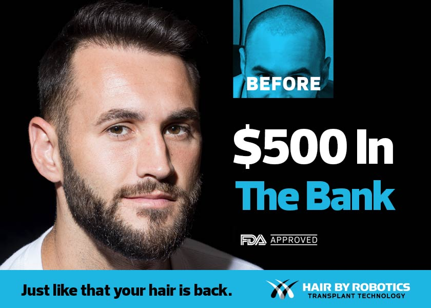 Receive $500 credit toward your hair transplant procedure